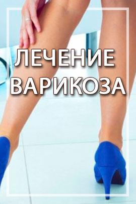 Лечение варикоза Харьков